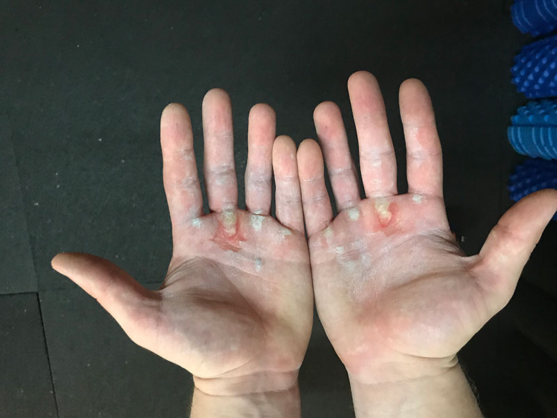 calluses-from-forming-on-your-palms